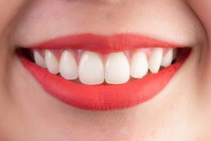 横浜の矯正歯科、横浜マウスピース矯正歯科センター、矯正による美容効果 スマイルラインの変化