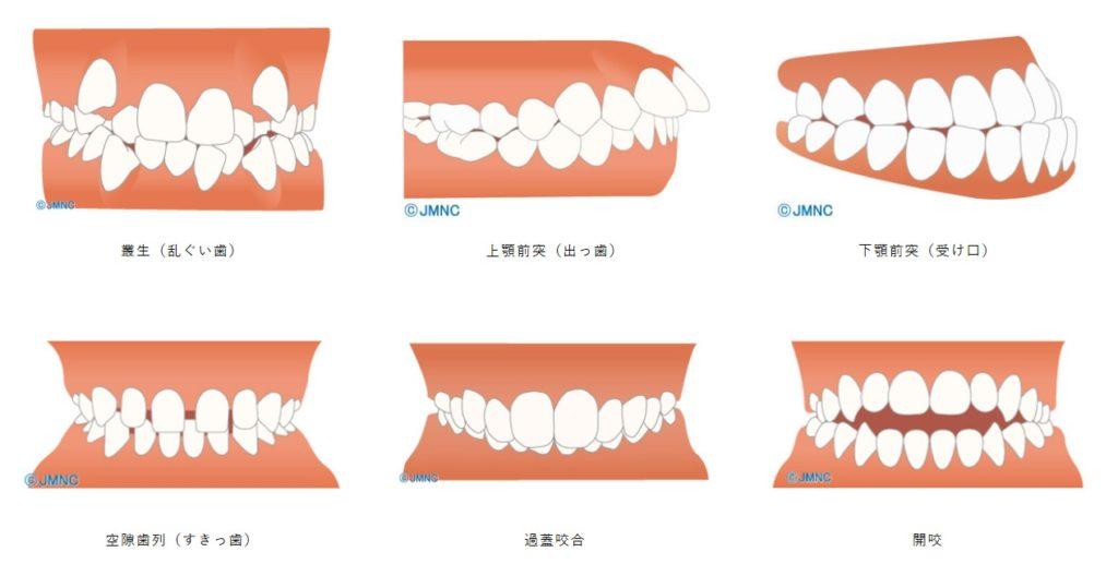 医療費控除対象となる歯並び