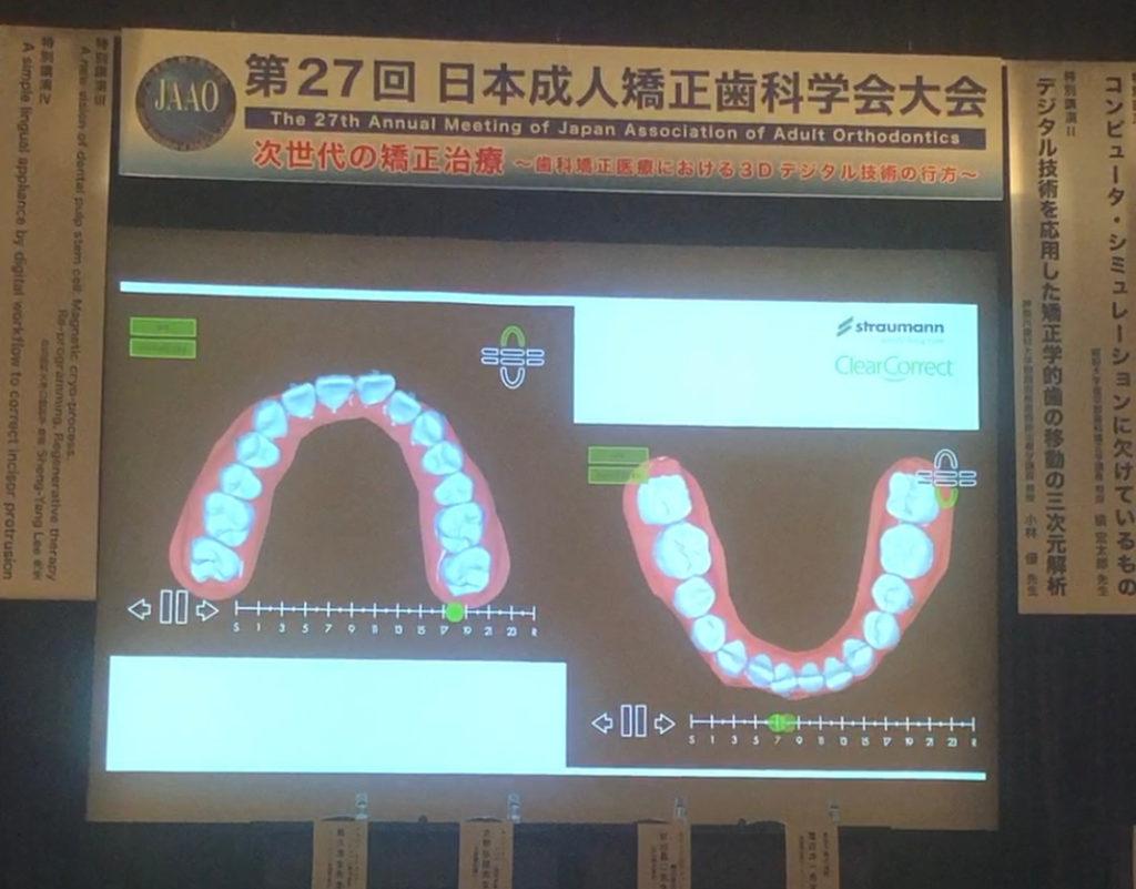 日本矯正歯科学会 クレアコレクトの紹介