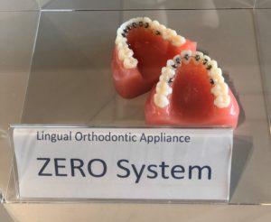 日本舌側矯正歯科学会に参加、ZEROブラケット