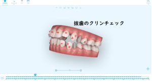 インビザラインギャラリー抜歯クリンチェック