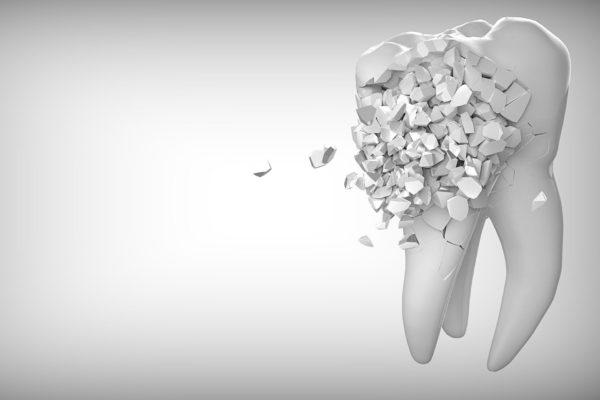 横浜の矯正歯科、横浜マウスピース矯正歯科記事イメージ
